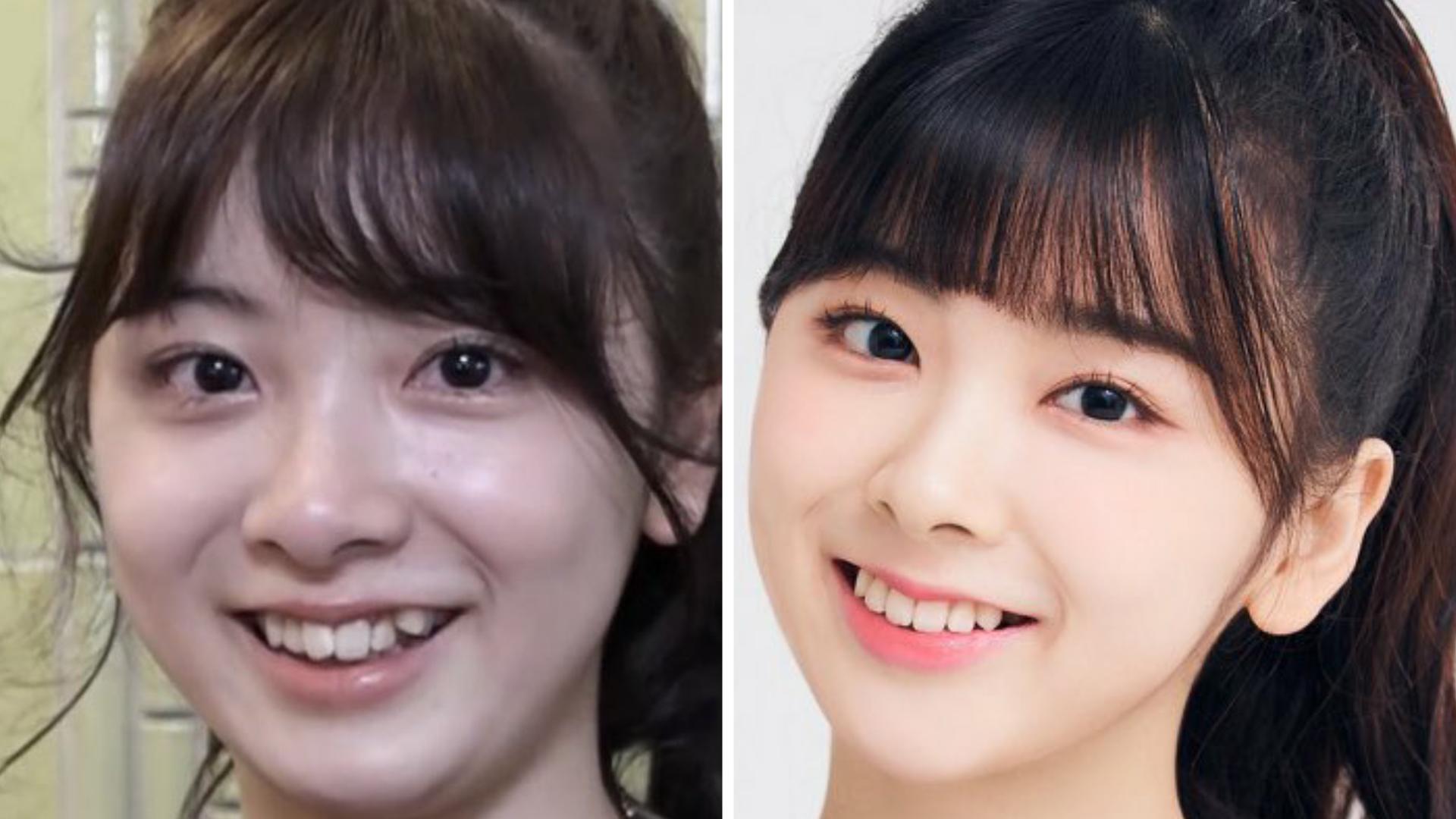 ミイヒの痩せた前後の比較,歯並び比較